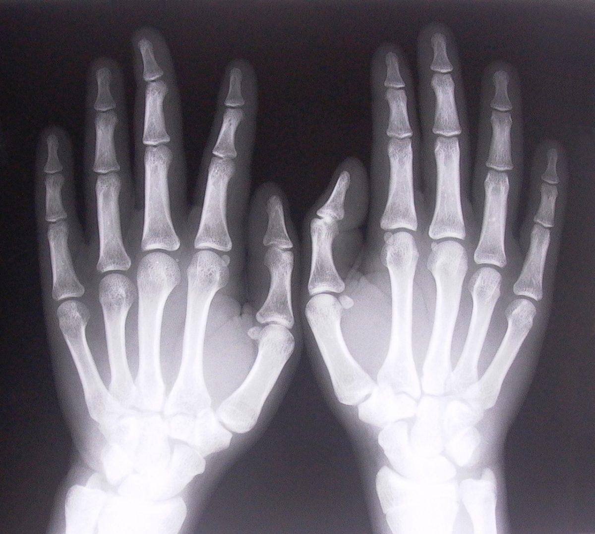 Na problemy ze stawami może pomóc ortopeda